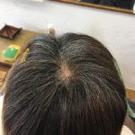 奈良県奈良市|若白髪、グレーカラー、30代 40代 若白髪染め、カラーリングが得意なサロン、美容院、美容室、奈良県奈良市でヘッドスパが進化したアーユルヴェーダ とリンパマッサージ得意なサロン、美容院、美容室、奈良県奈良市で白髪染め、ヘナカラー得意なサロン、美容院、美容室 奈良県奈良市|奈良 イルミナカラー、美容院、美容室カラー、奈良 アディクシーカラー、奈良市 スロウ、アッシュカラー 奈良市、ヘアーサロン、グラデーションカラー、白髪染め、奈良市 ヘナカラー、奈良 カラーリスト、エクステ カラー、ロング エクステ、おしゃれぞめ、西大寺、大和郡山、奈良市、駅前、駐車場完備、髪質改善 カラー、ブリーチカラー、明るい白髪染め、インディコ カラー、木津、高の原、奈良で編込みエクステが得意なサロン、美容院、美容室、奈良県奈良市でヘッドスパが進化したアーユルヴェーダ とリンパマッサージ得意なサロン、美容院、美容室、グレージュ カラー、ピンクアッシュカラー