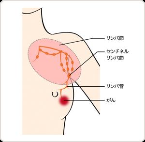 腋窩リンパ節|ヘッドスパが進化したリンパマッサージはリンパを流すデットクスとシロビャンカやリマサリマッサージをおもに頭の筋肉やリンパをサスルったりします。リンパが滞ると冷え性、疲れ、足や顔のむくみ、太りやすい、肩こり、顔のくすみやくま、乳がん(女性)の症状が出やすくなります。アンチエイジング、活性酸素に効果があり、美容やコスメに興味がある方は必見です。シミやしわや口角のたるみ、くせ毛の原因など毒素排出をうながすリンパマッサージ奈良市、美容室you,